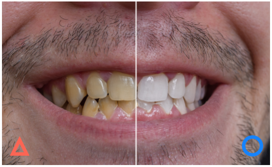 印象の良い歯・そうでない歯